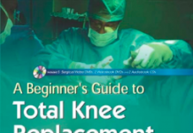 A Beginner's Guide to Total Knee Replacement