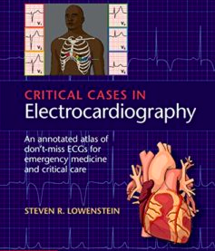 Critical Cases in Electrocardiography: An Annotated Atlas of Don't-Miss ECGs for Emergency and Critical Care