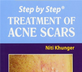 Step by Step Treatment of Acne Scars